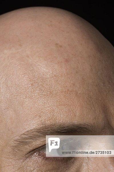 Kahler Kopf eines Mannes