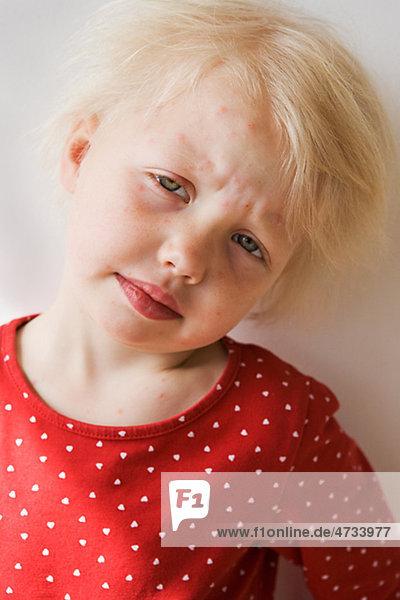 Porträt des Mädchens mit Windpocken  Studio shot