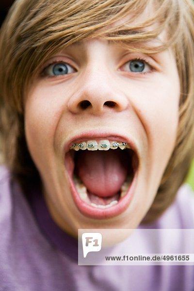 Teenager  die geschweiften Klammern  Nahaufnahme