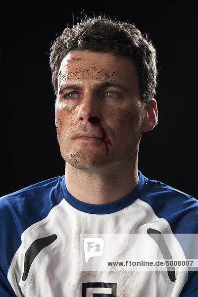 Ein Fußballspieler mit einer blutigen Nase.