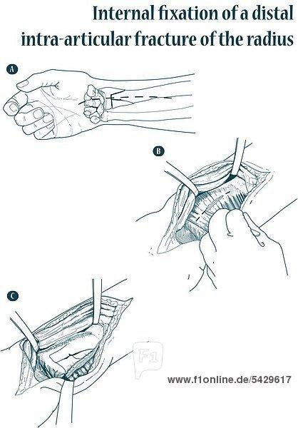 Operation - Einsatz einer Platte am Handgelenk bei Radiusextensionsfraktur (Übersicht A)