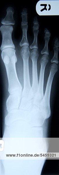 Röntgenbild eines Fußes