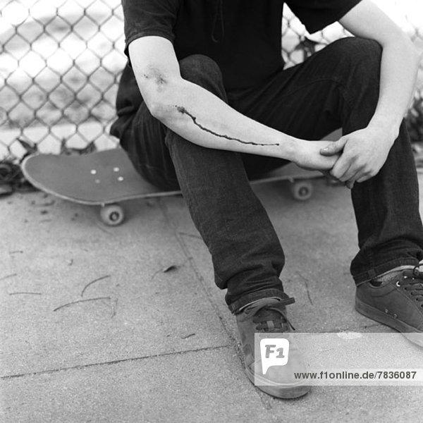 Skater mit verletztem Arm auf dem Skateboard sitzend Skater mit verletztem Arm auf dem Skateboard sitzend
