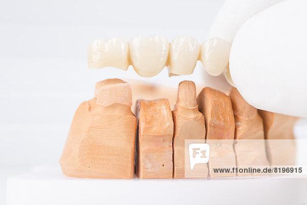 Deutschland  Freiburg  Arzt mit fertigem Modell der Zahnbrücke