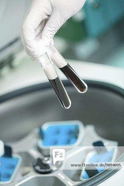 Prüfung, Wissenschaftler, einsetzen, Zentrifuge
