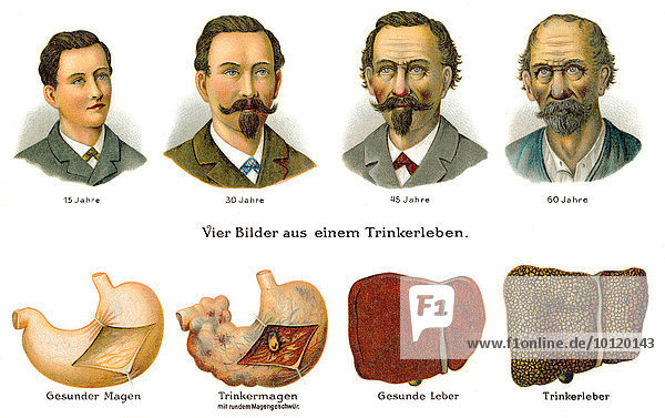 Visual development of an alcoholic throughout life  19th Century health guide illustration