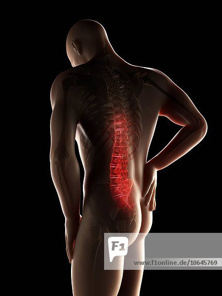 Human back pain  artwork