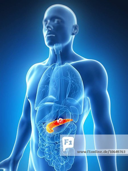 Human pancreas showing tumor  artwork
