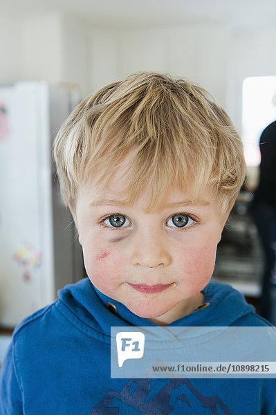 Sweden  Portrait of blonde little boy (2-3) with black eye