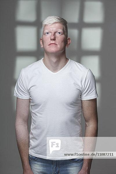 Albino-Mann schaut auf  während er vor grauem Hintergrund steht.