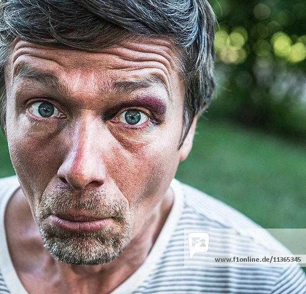 Porträt eines Mannes mit schwarzem Auge  der in die Kamera schaut und das Gesicht zieht