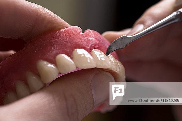 Gebiss im Zahnlabor