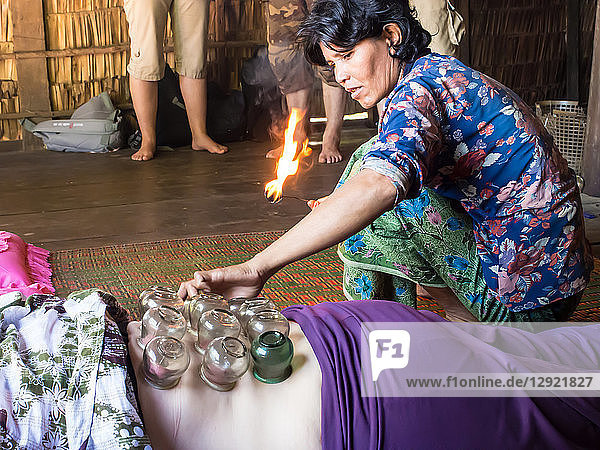 Traditional healing technique of fire cupping  village near Siem Reap  Cambodia  Indochina  Southeast Asia  Asia
