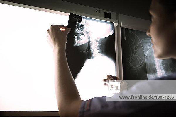 Ärztin untersucht Hals-Röntgenbild auf medizinischem Diagnosegerät