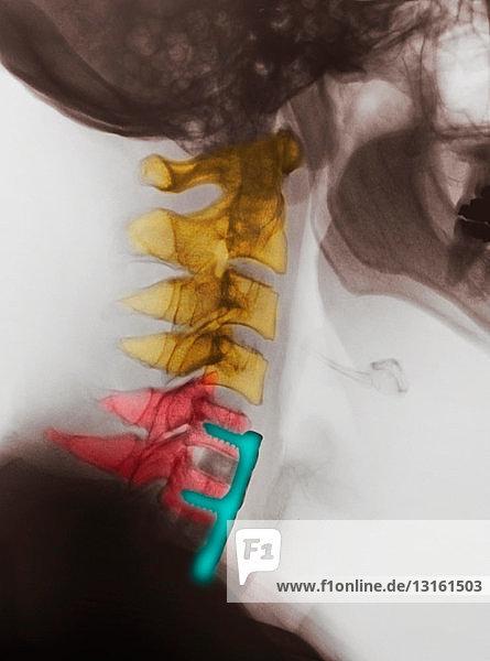 Zervikalröntgenbild mit Wirbelsäulenversteifung  C5  C6  C7
