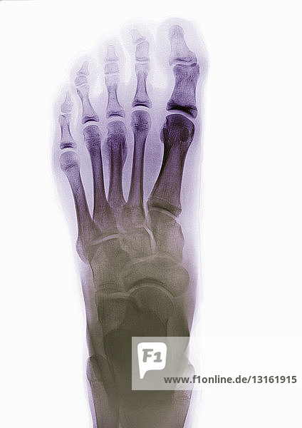 X-ray of normal foot
