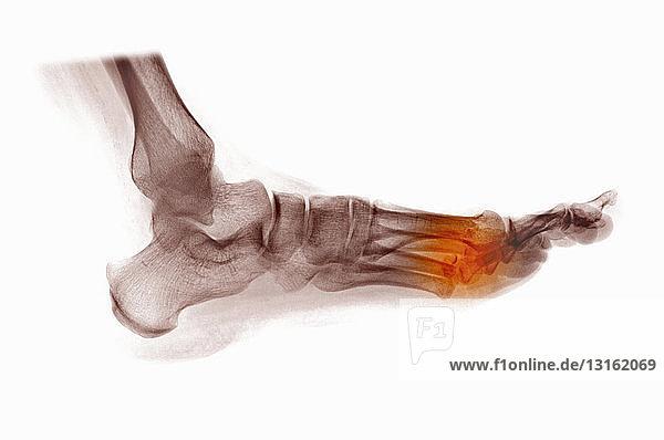 Röntgenaufnahme des Fußes mit gebrochenen Mittelfußknochen