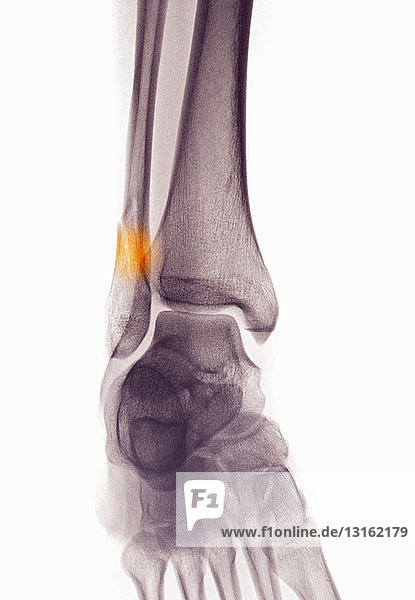 ankle x-ray showing fractured distal fibula