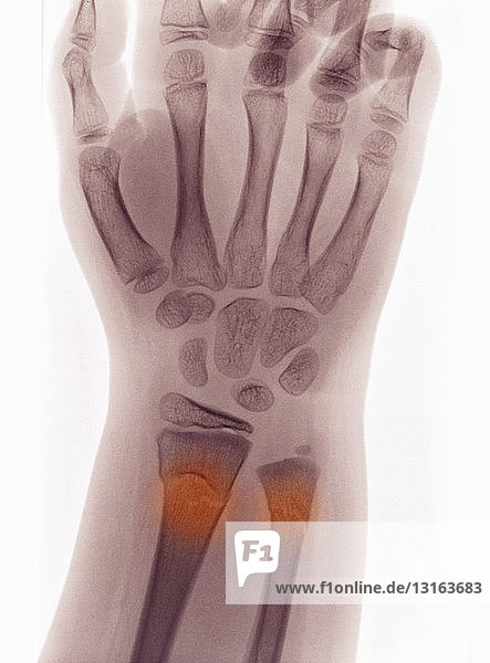 X-ray of wrist with buckle fracture