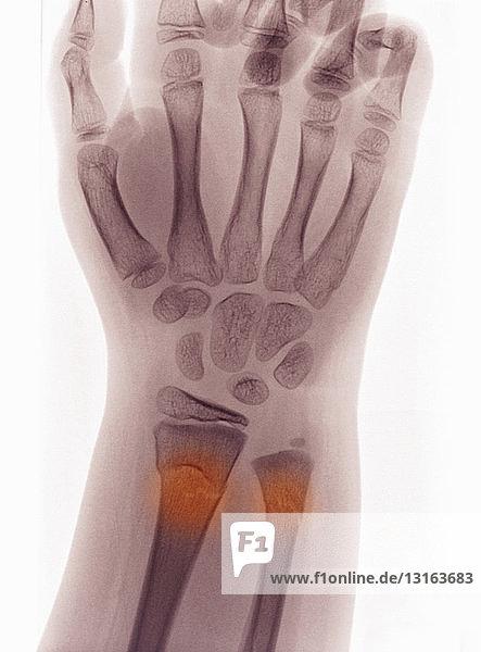 Röntgenaufnahme des Handgelenks mit Knickfraktur