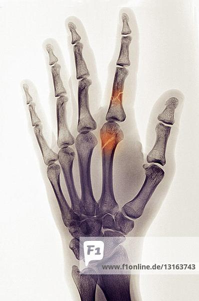 farbiges Röntgenbild der Hand mit Fingerfrakturen