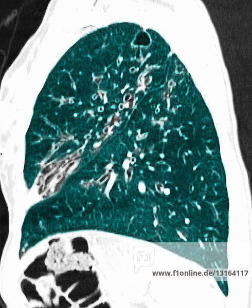CT scan of chest showing cystic fibrosis