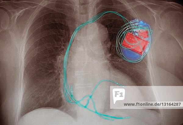 Brust-Röntgenbild zeigt einen implantierten PaCemaker