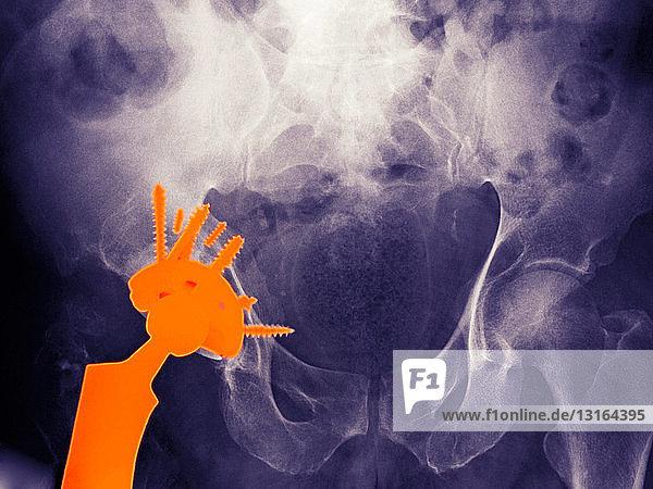 Röntgenbild eines Hüftgelenksersatzes bei einem 56 Jahre alten Mann