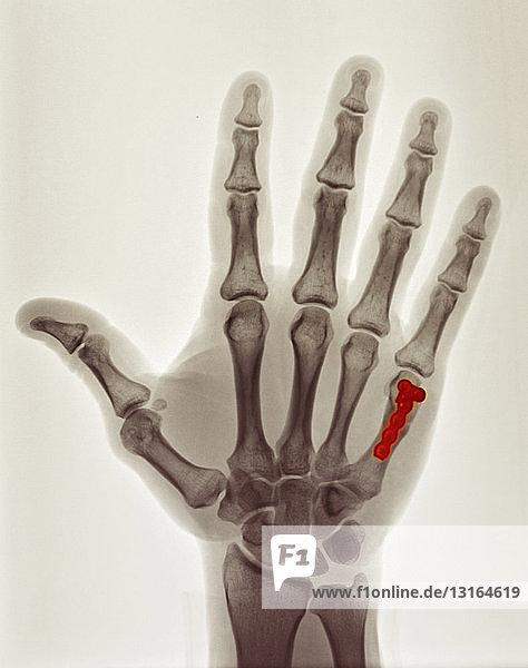 Farbige Röntgenaufnahme  die die Reparatur der Boxerfraktur zeigt