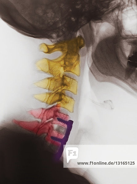 X-ray of neck showing spinal fusion