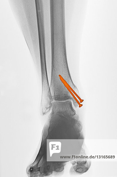 x-ray of an ankle fracture