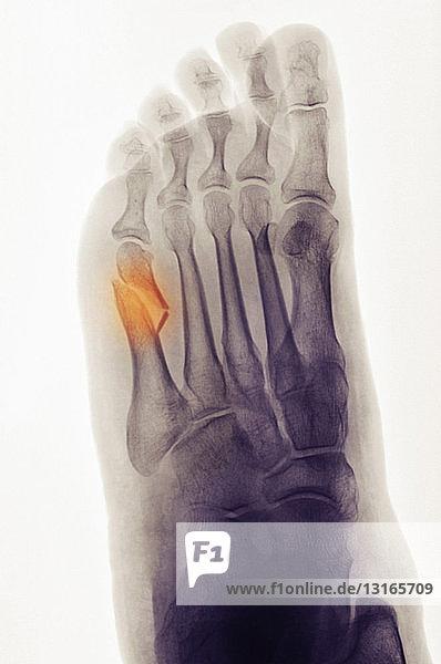 Röntgenaufnahme des Fusses mit einer fünften Metatarsalfraktur