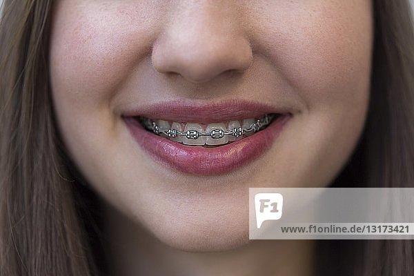 Nahaufnahme eines lächelnden Teenager-Mädchens mit Zahnspange