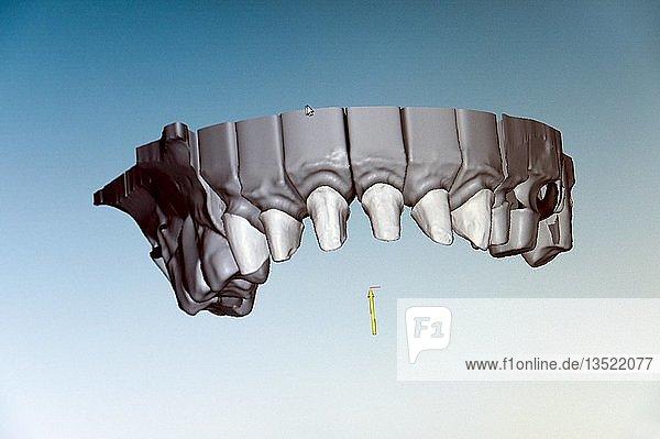 Darstellung eines Oberkiefermodells