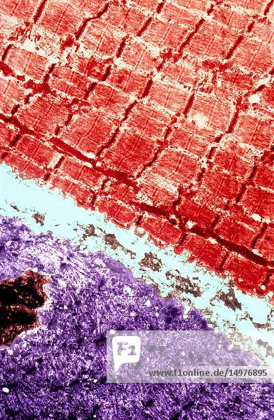 Electron micrograph of striated muscle tissue.
