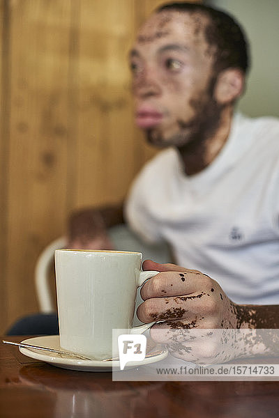Young man with vitiligo sitting in a cafeteria and holding a coffee mug
