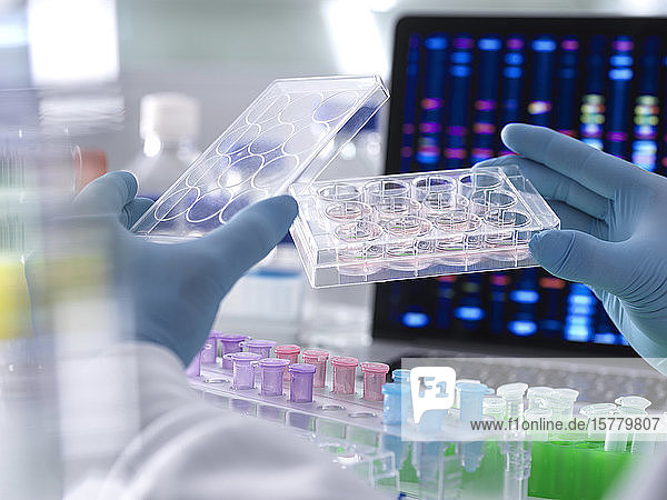 Scientist pipetting DNA samples into microcentrifuge tubes during an experiment in the laboratory with the DNA profile on the monitor screen.