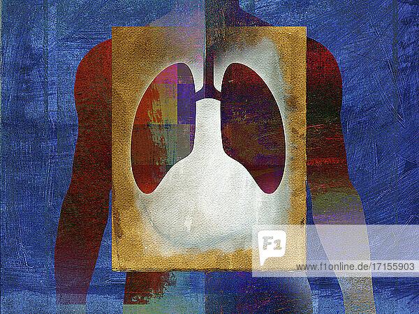 Lungenkrankheit