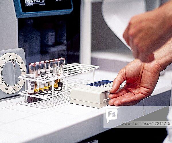 Medizin  Biologie  Analyse  Blutanalyse  Urinprobe  Kontrolle  Gesundheit | Medicine  biology  analysis  blood analysis  urine sample  control  health