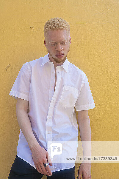 Germany  Cologne  Albino man in white shirt against yellow wall